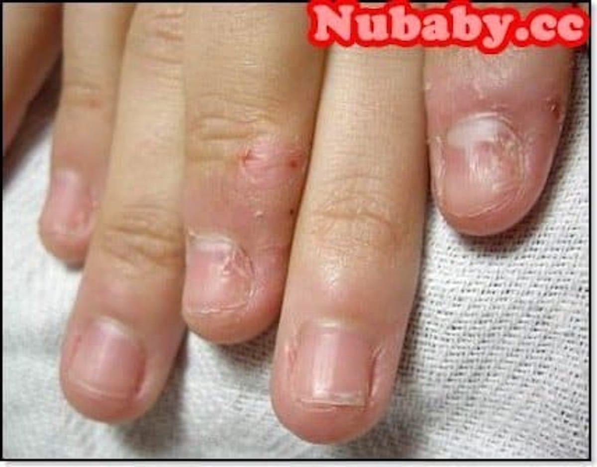 指紋不見 矯正 摳咬指甲與撕皮到沒有指紋