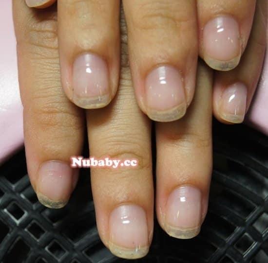 從小就有玩指甲的習慣 台大研究生的指甲矯正