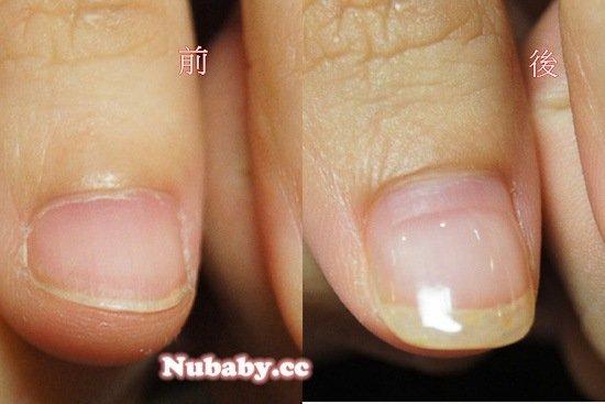 忍不住摳咬指甲 台大研究生的指甲矯正