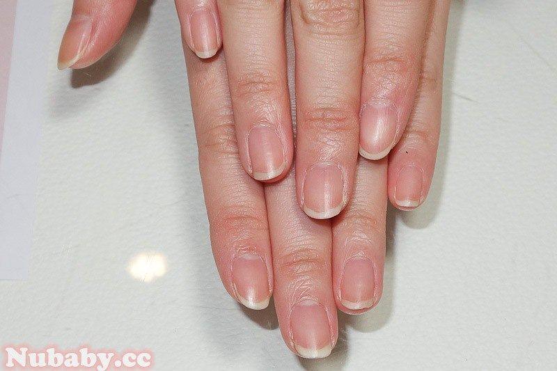 指甲易斷矯正- 矯正型璀璨凝膠指甲