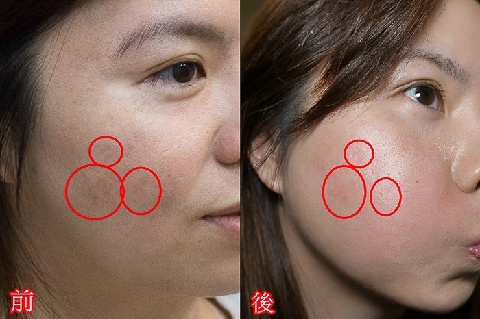 爛痘爛臉凹疤保養大作戰-終於可以上妝了1