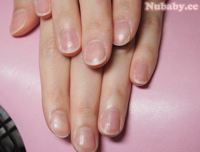 指甲像扇子寬扁 的 扇形指甲矯正