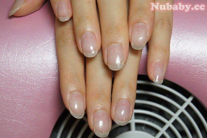指甲像扇子寬扁的扇形指甲矯正