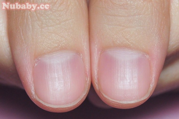 扇形指甲矯正-軟甲摳甲 指甲前端軟又扇形