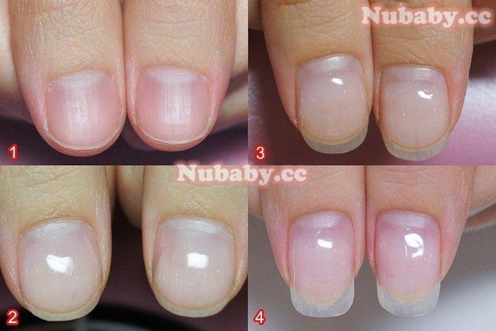 扇形指甲矯正 - 軟甲摳甲,指甲前端軟又扇形