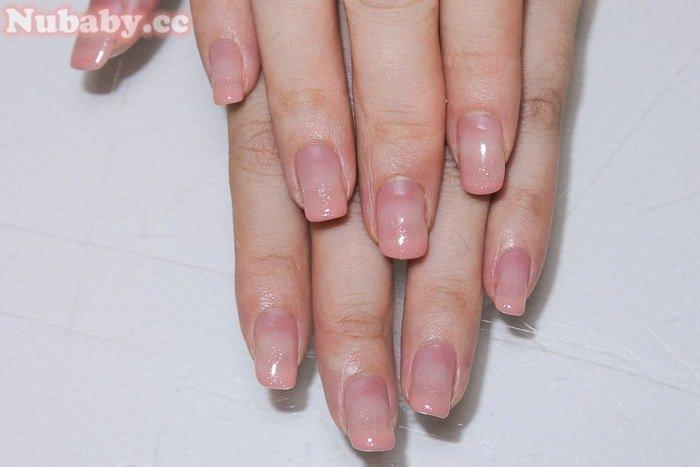 扇形指甲矯正-會計事務的小穎為婚紗努力