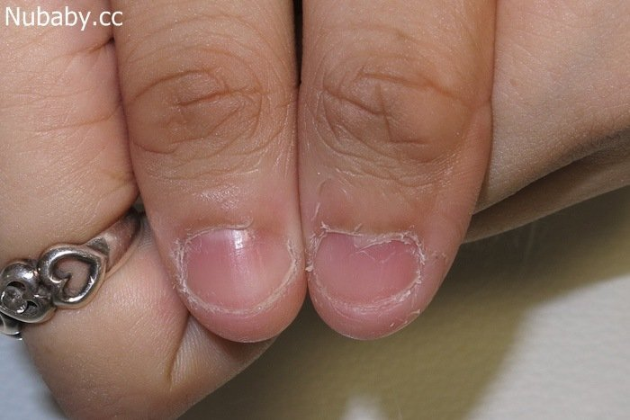 玩壞手指甲-咬指甲摳皮-國中行政老師小韋
