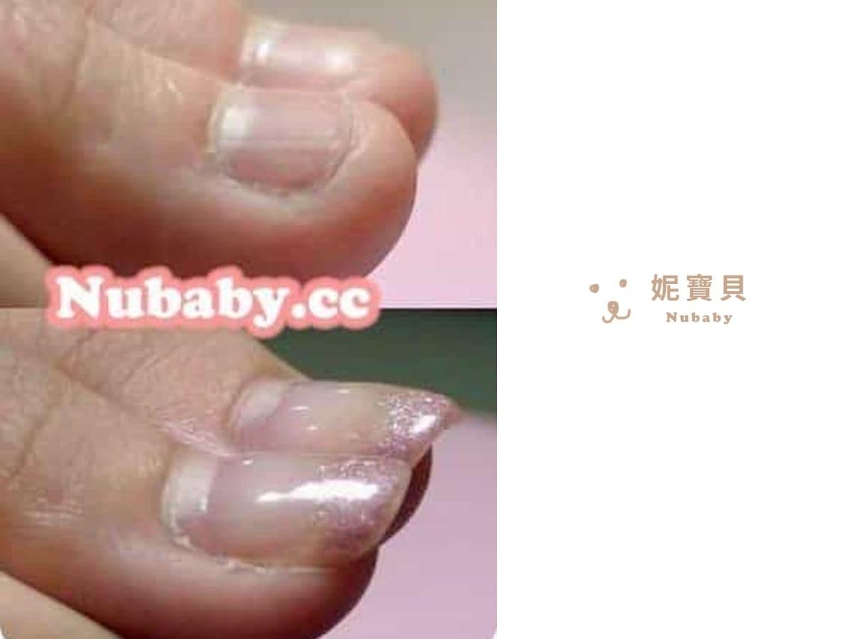 摳咬指甲壞習慣 指甲矯正-小C終於有漂亮的指甲