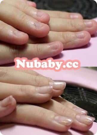 摳咬指甲飛甲矯正-小C終於有漂亮的指甲