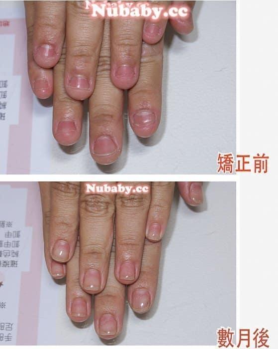 壓力大摳撕指甲-甲床外露也能矯正成功