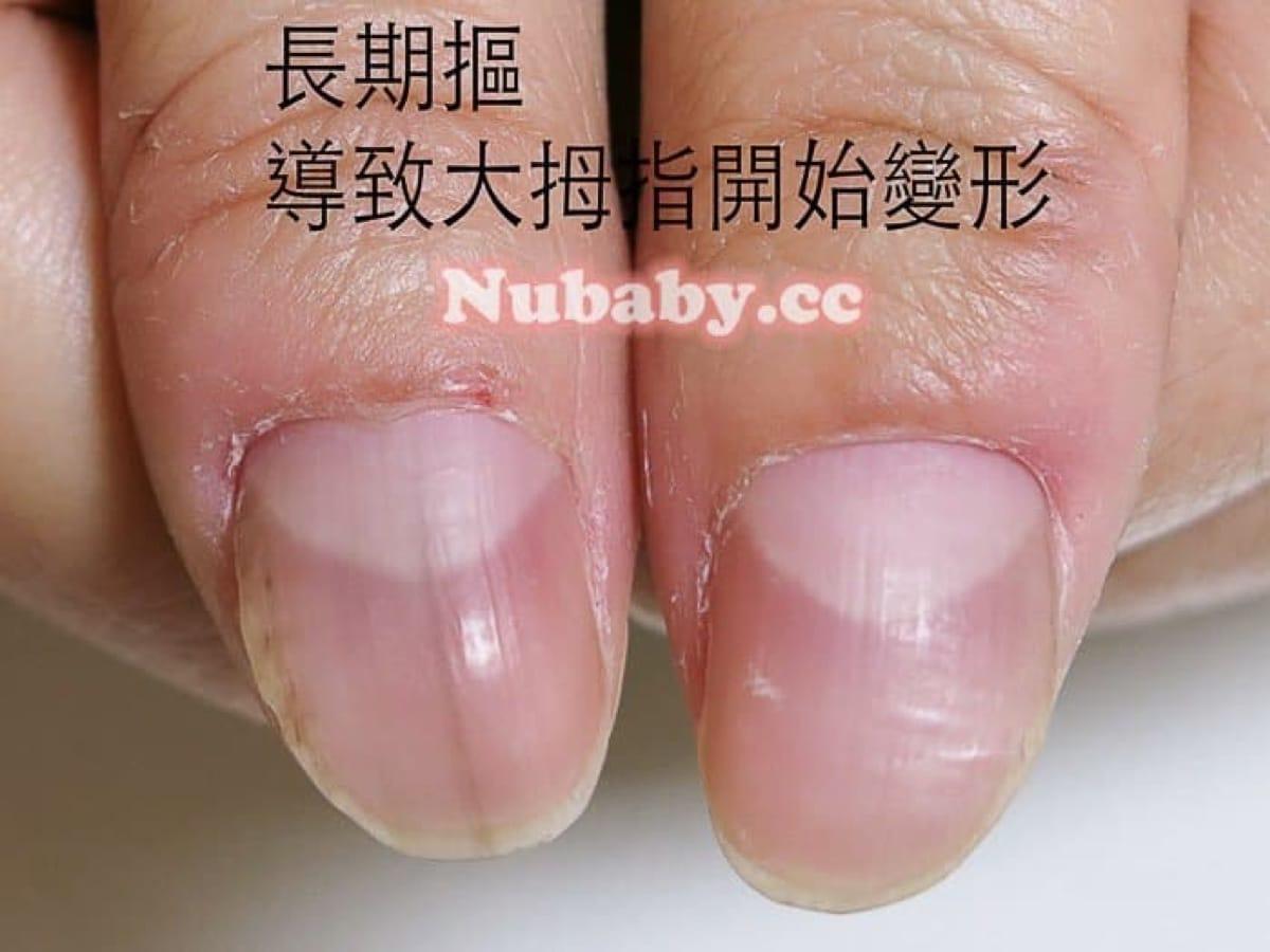 拇指變形矯正-摳咬拇指變形 矯正變健康