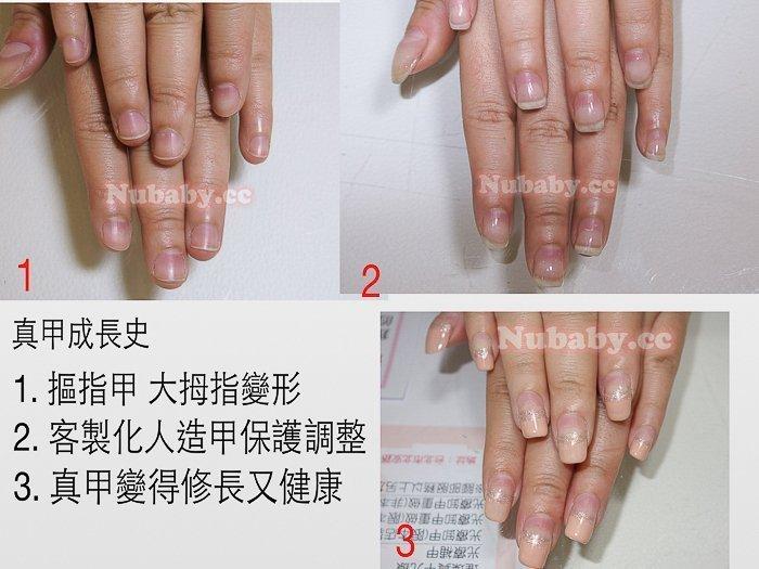 拇指變形矯正 摳咬拇指指甲矯正-拇指變形終於變健康