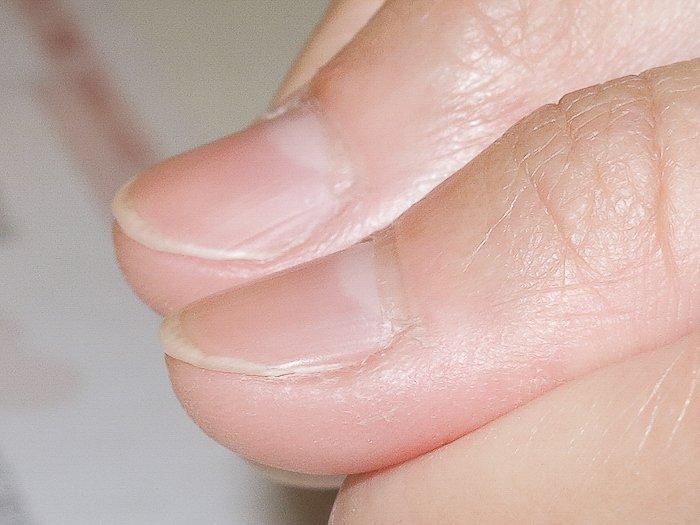 飲料店摳咬指甲矯正-小廖為了結婚拼了 - 妮寶貝-指甲矯正,光療凝膠,精油
