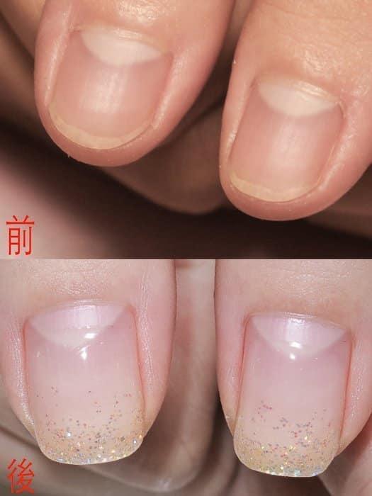 摳皮變形指甲 矯正-國小老師指甲大變形