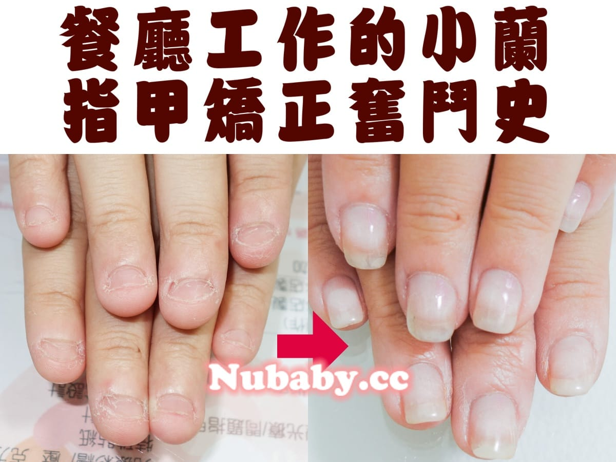 餐飲業指甲矯正-指甲破壞超短也能變健康 - 妮寶貝-指甲矯正,光療凝膠