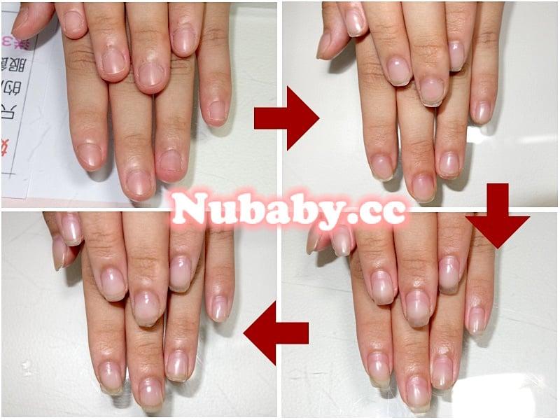 摳咬指甲矯正-準大生周妹妹的指甲變健康