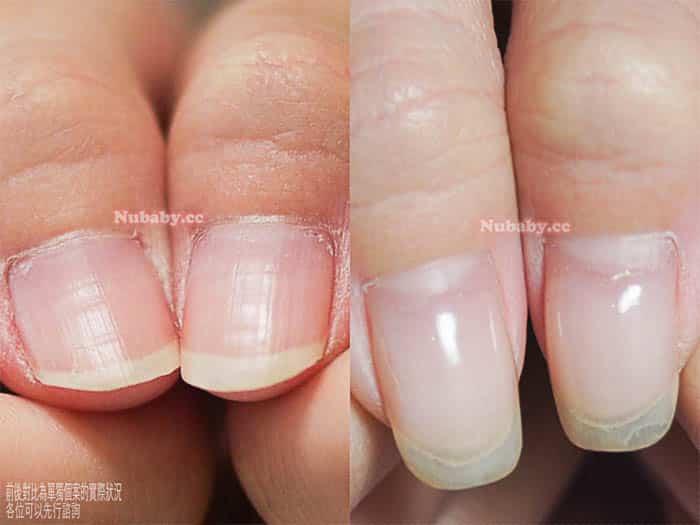 指甲問題 摳咬指甲-資訊業小中的指甲矯正紀錄