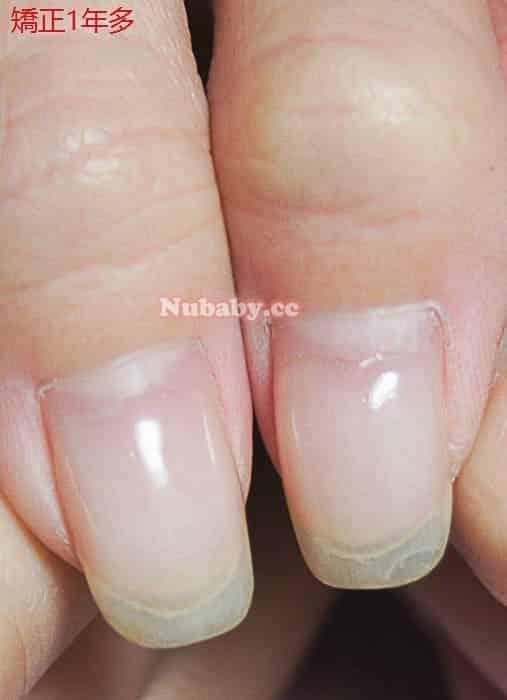 指甲皮 摳咬指甲-資訊業小中的指甲矯正紀錄