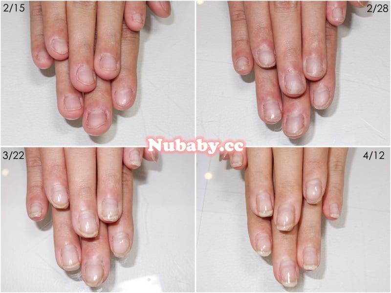 撕指甲 摳指甲 咬指甲 的矯正方法