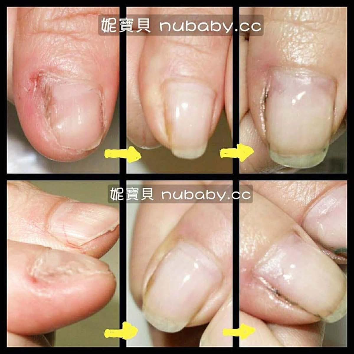 摳甲指甲矯正-國小美術老師指甲受傷長不大