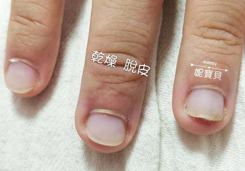 手部硬繭處理 保養-矯正指甲的重點