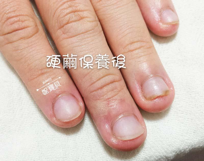 手部硬繭處理保養-矯正指甲的重點