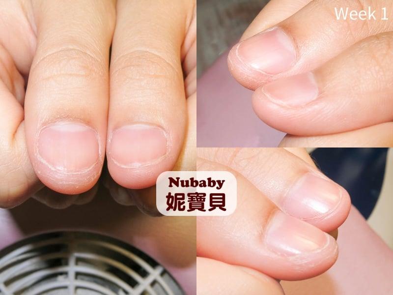 甲床外露 台中小護士超短的指甲