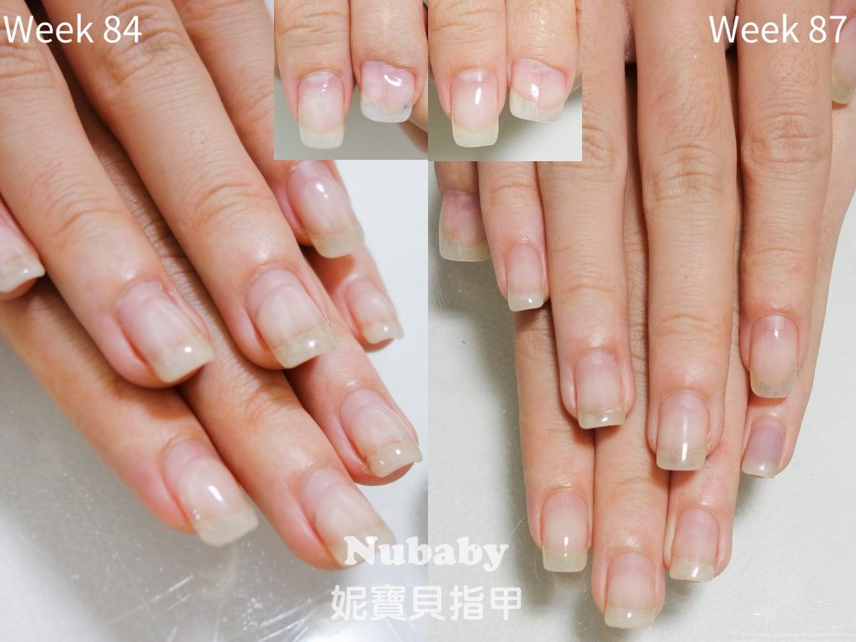 咬指甲矯正-保濕不足導致成果受限