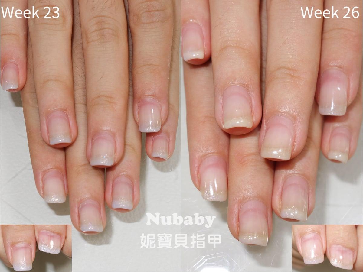 指緣保濕不夠影響矯正的例子