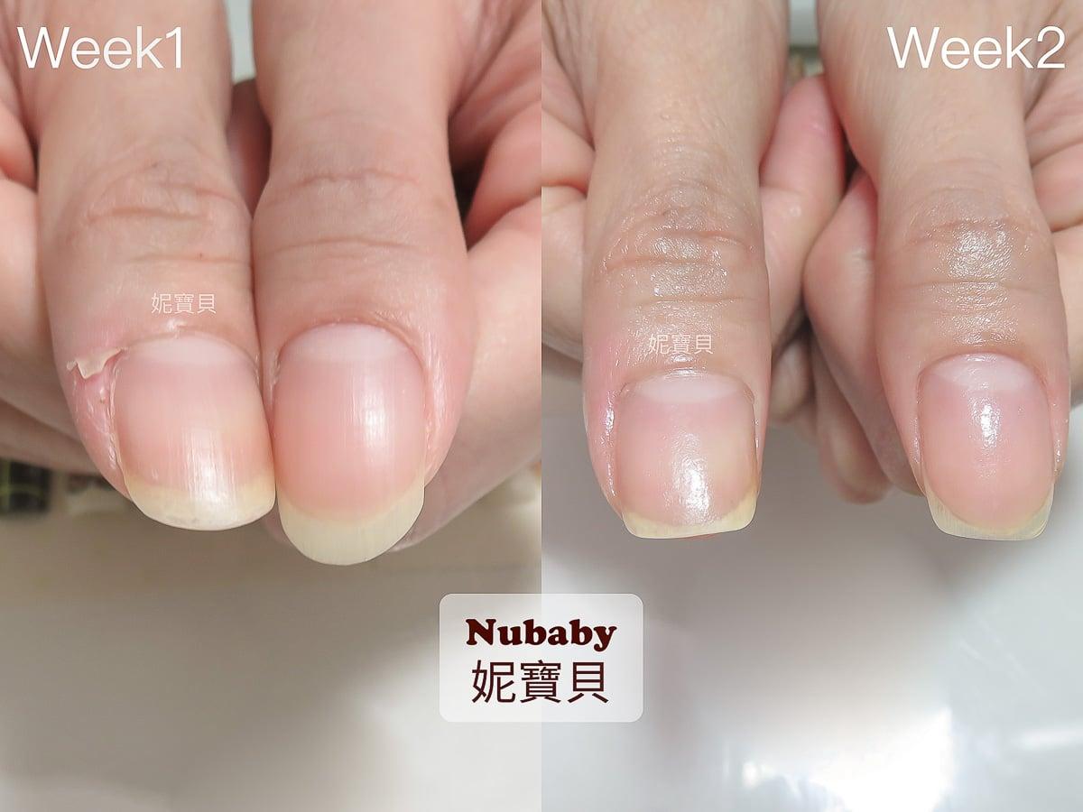 矯正指甲-做一次凝膠可以解決問題指甲嗎?