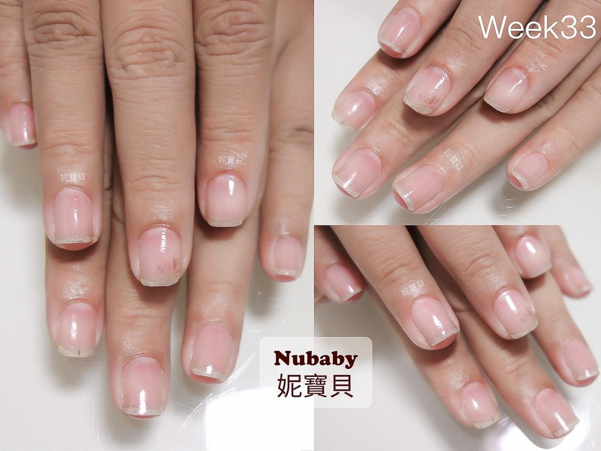 甲床萎縮 退後 外露&甲面受損 變形 凹凸 - 指甲矯正