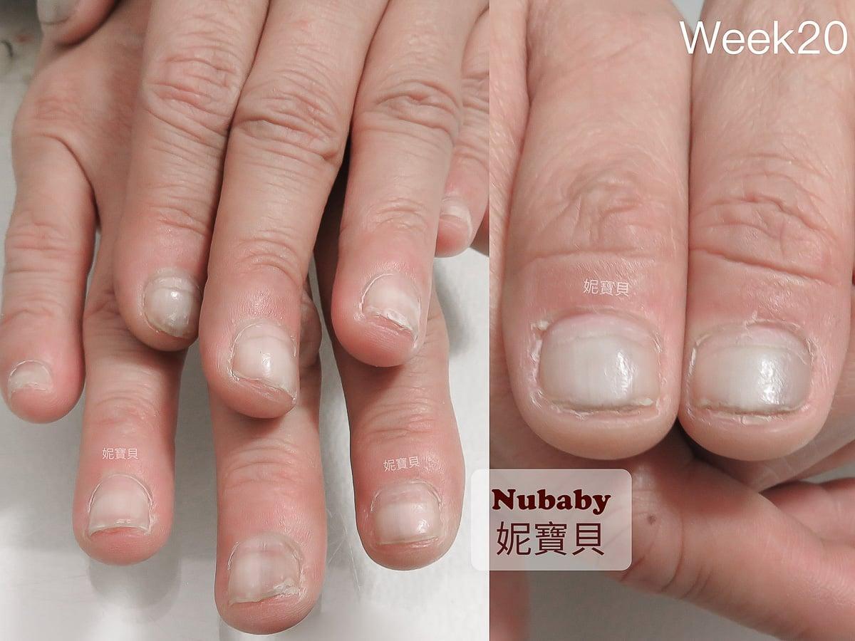 矯正指甲-餐飲業的 指甲變黑 黑甲症 甲床萎縮 甲面變形