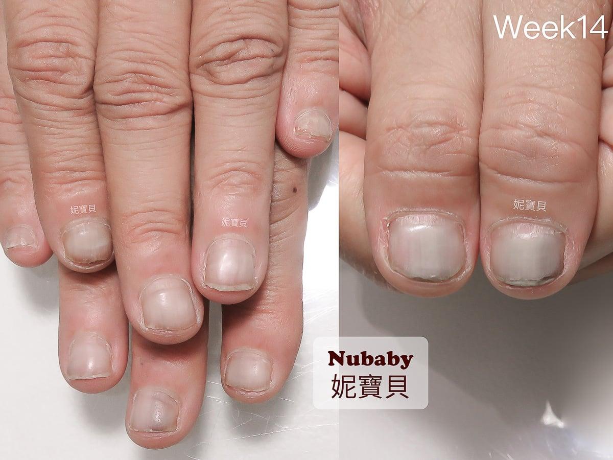 矯正指甲-餐飲業的 黑甲症 甲床萎縮 甲面變形