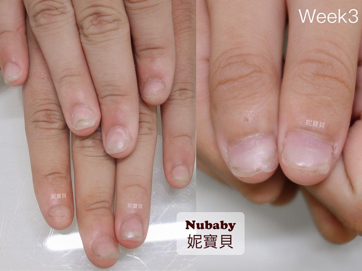甲床太短變形-重建男生嚴重摳咬的指甲