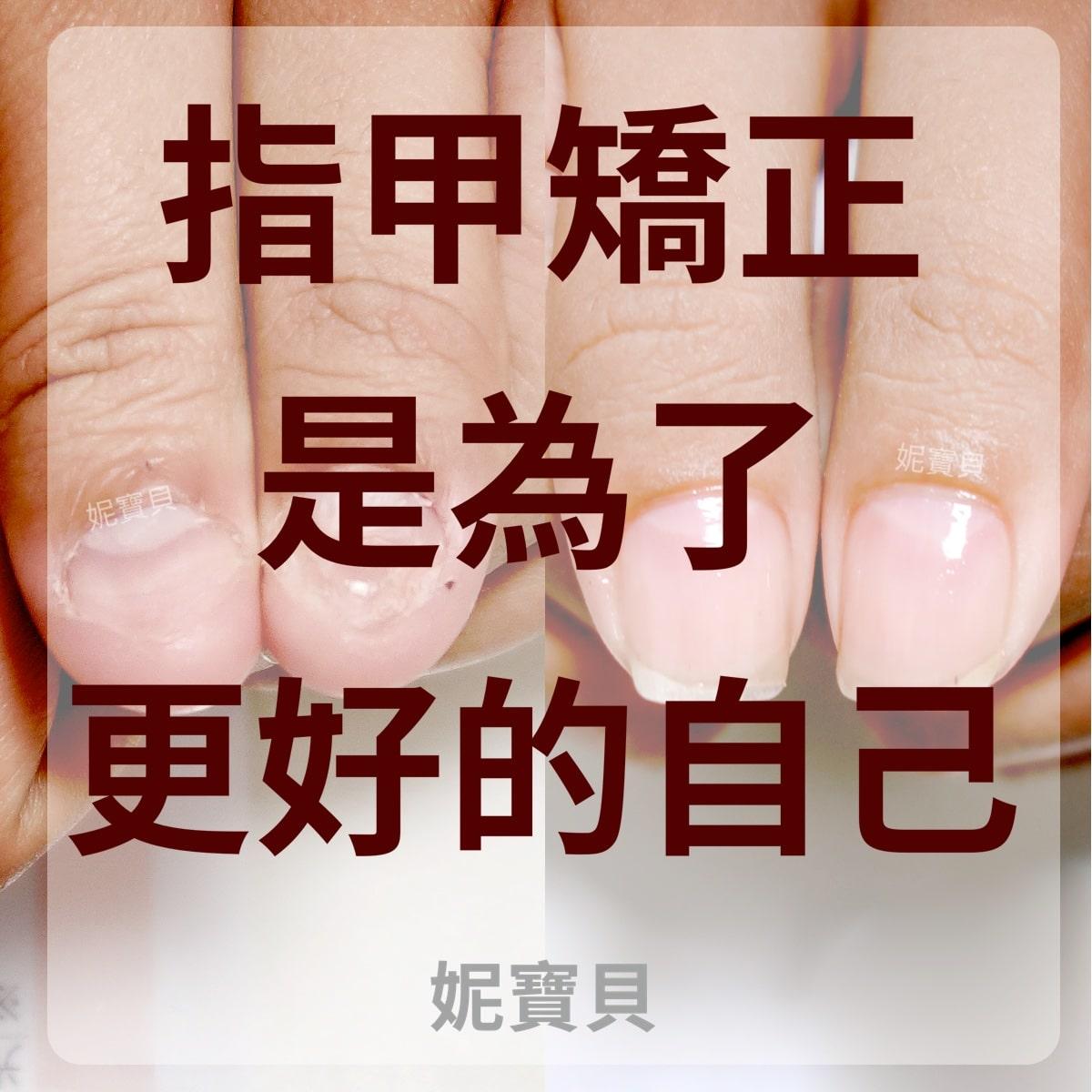 指甲矯正-是為了更好的自己