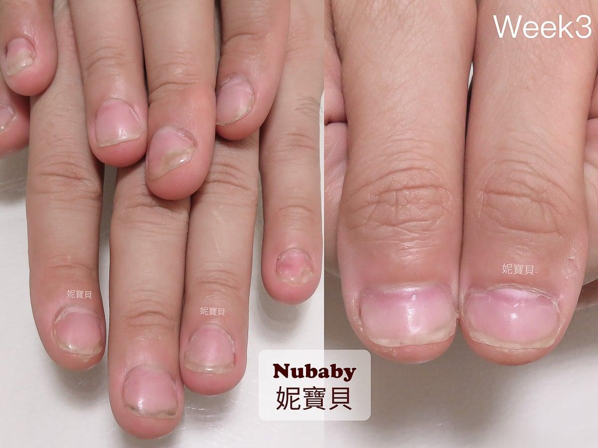 摳咬手指 指甲超短 男生的甲床變長過程