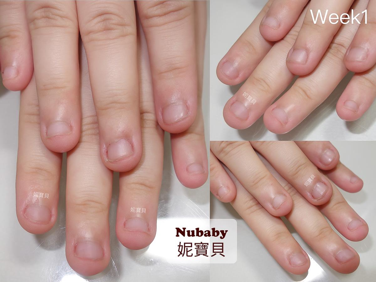 咬指甲矯正-修復指緣 指肉變長 延伸甲床 超短指甲變美甲