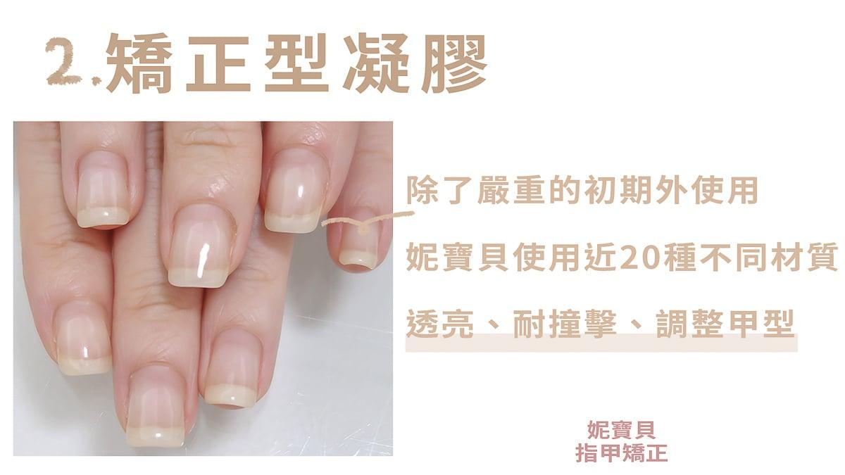 矯正型凝膠 指甲處理懶人包 20張圖就搞懂
