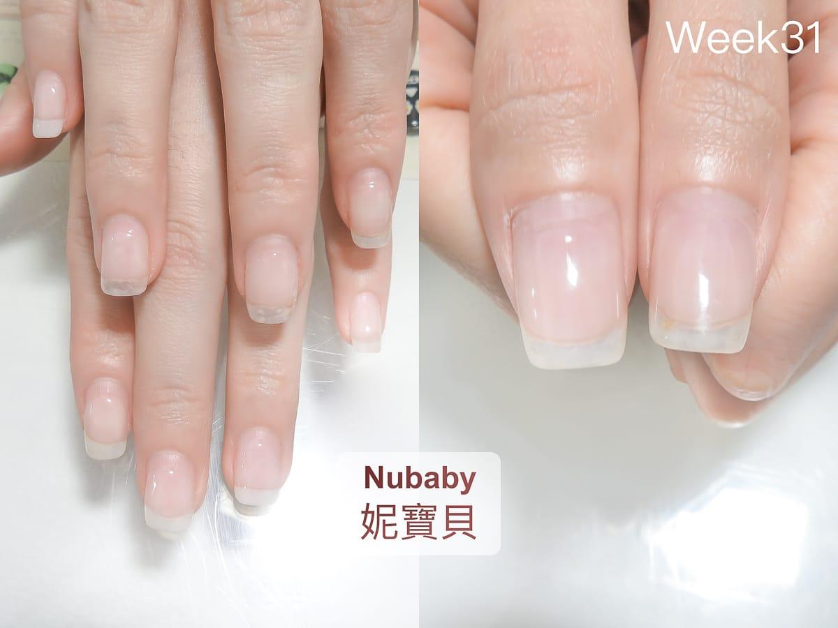 摳手咬甲 撕摳指緣皮膚 短指甲的矯正過程