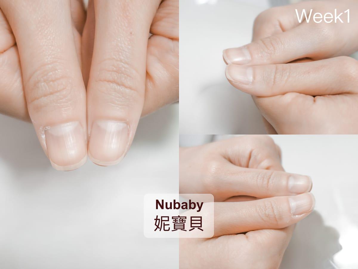 摳手受傷 撕摳指緣皮膚 短指甲的矯正過程