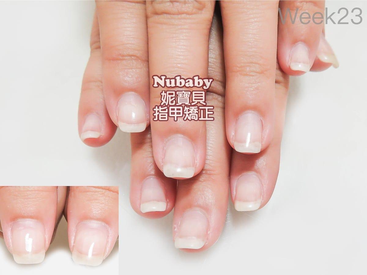 指甲問題解決-5個月處理 甲肉萎縮 扇形 飛甲