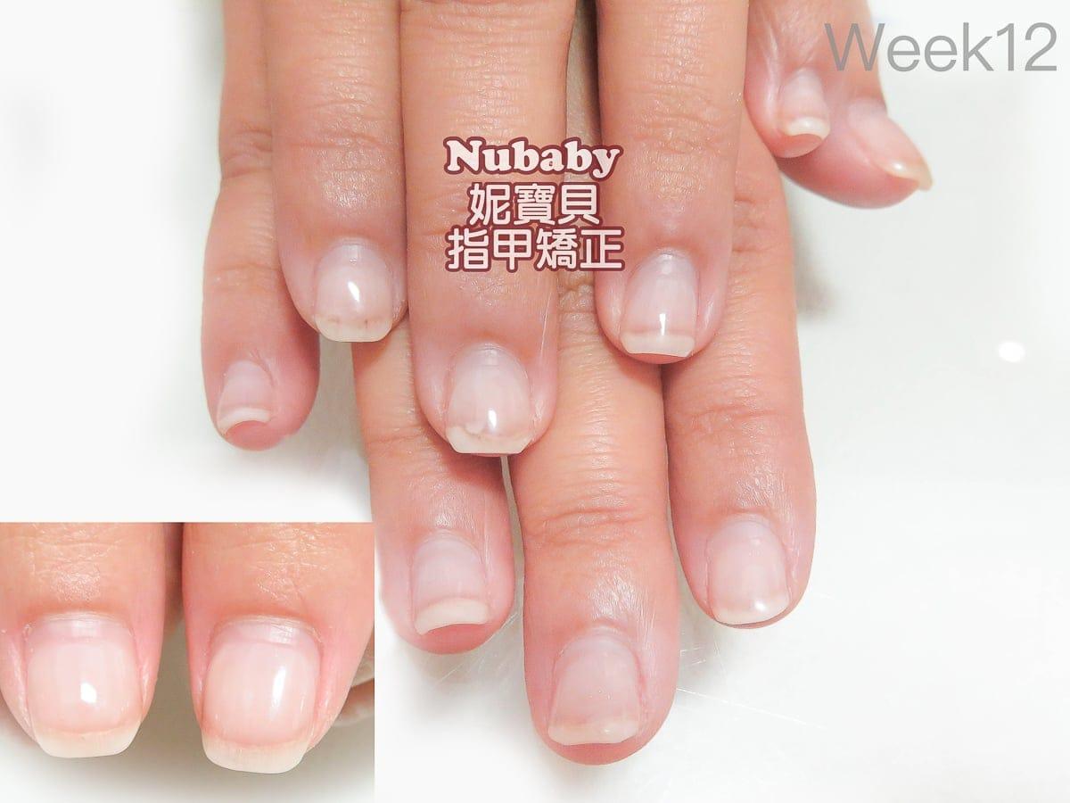 指甲問題 5個月處理 甲肉萎縮 扇形 飛甲