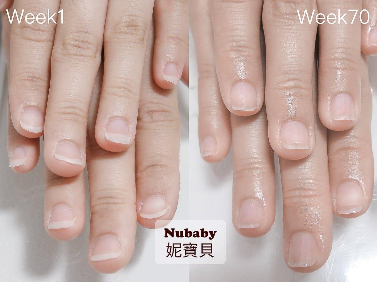 指甲問題 指甲甲型-扇形 飛甲矯正 保濕不足進度慢的例子