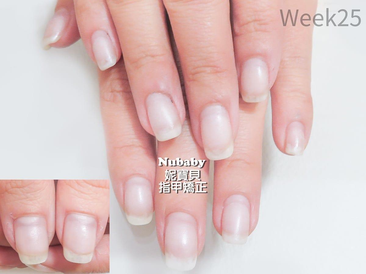 甲床過短-指甲矯正 嚴重咬指甲的問題指甲處理