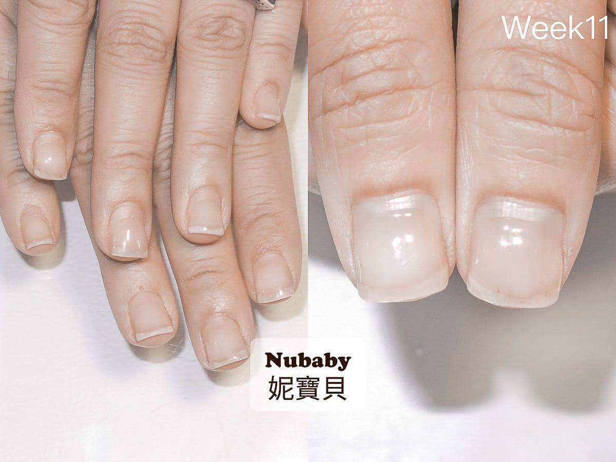 甲型矯正-咬指甲 指緣乾的扇形指甲矯正