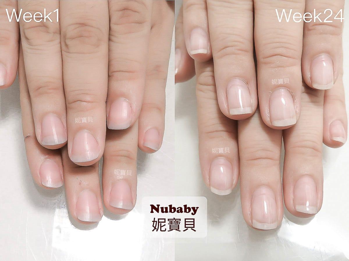 扁指甲 指甲矯正-扁平扇形甲到修長美甲