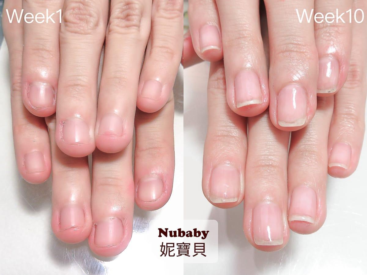 咬指甲 喜歡咬指甲 造成甲床外露 10週指甲矯正