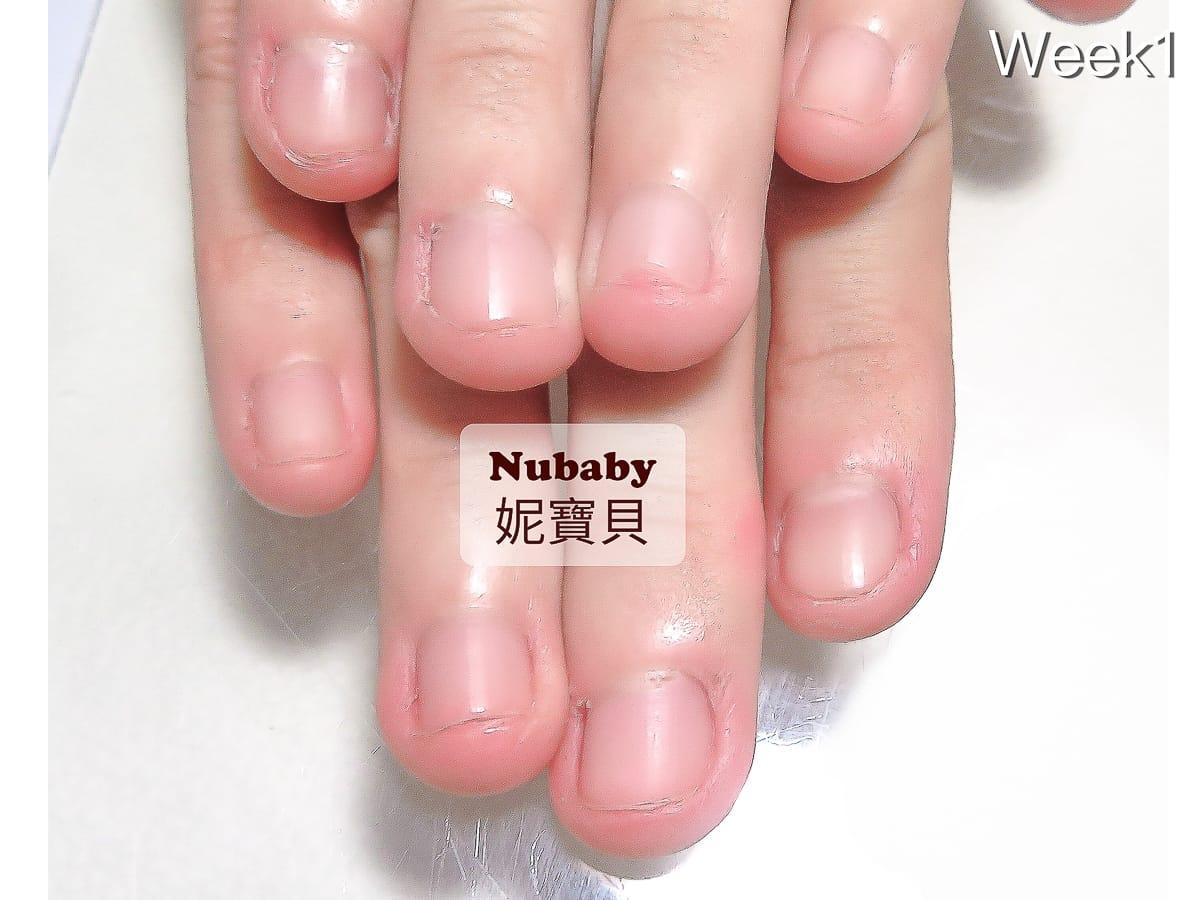 喜歡咬指甲 造成甲床外露 10週指甲矯正
