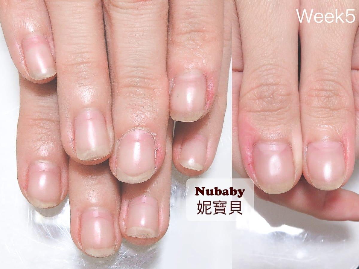 咬指甲 造成甲床外露 10週指甲矯正