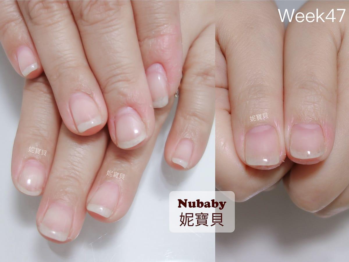 處理 指甲 問題-甲床萎縮 扁平扇形甲的例子